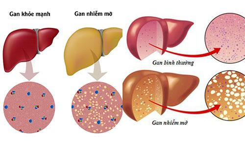 Nguyên nhân bệnh gan nhiễm mỡ