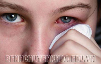 Cách xử trí khi côn trùng bay vào mắt như thế nào