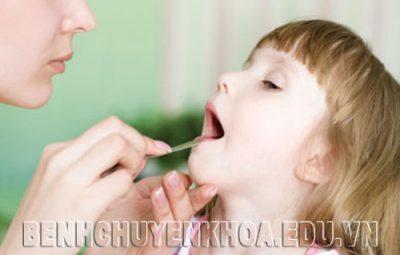 Nguyên nhân, triệu chứng và biến chứng nguy hiểm của viêm họng cấp