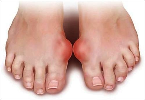 Những bài thuốc Nam chữa bệnh gout