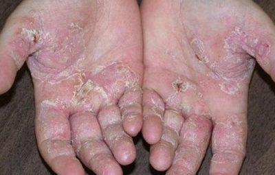 Cón hiều nguyên nhân gây ra bệnh tổ đỉa