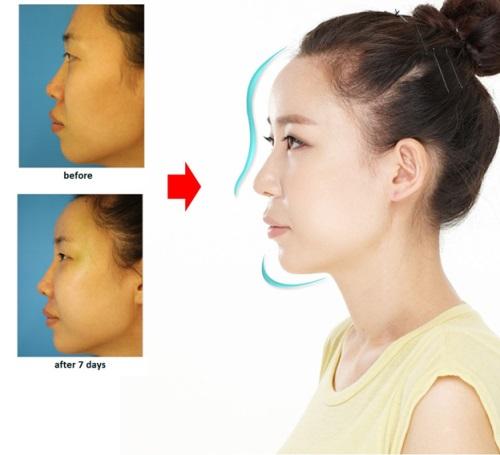 Nâng mũi bằng sụn tự thân được nhiều người ưa thích