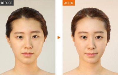 Nhấn mí mắt Hàn Quốc giúp chị em có hai đôi mắt