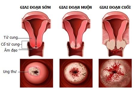 Các bệnh viêm nhiễm phụ khoa thường gặp khi mang thai