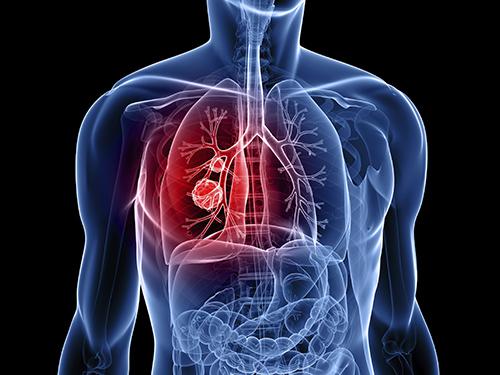 Thường xuyên bị nhiễm trùng là dấu hiệu cảnh báo bệnh ung thư phổi gia đoạn đầu