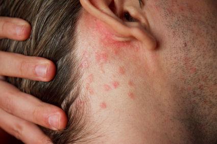 Xuất hiện những nốt phát ban trên da