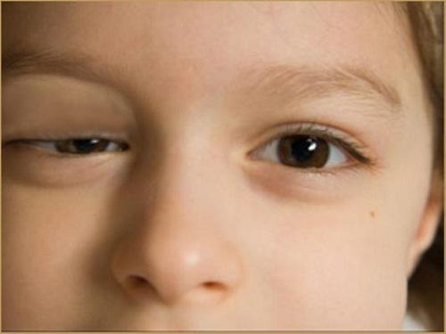 Sụp mi mắt biểu hiện của nhiều bệnh lý nguy hiểm