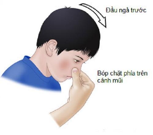 Giữ chặt bên mũi chảy máu ở tư thế cúi đầu về phía trước