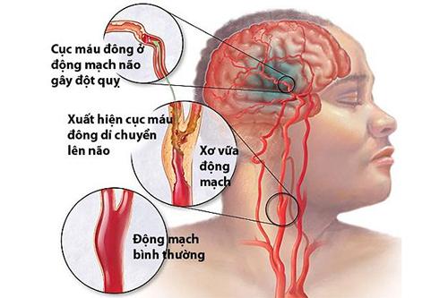 Dược sĩ hướng dẫn xử trí cơn đau ngực và phòng bệnh đột quỵ