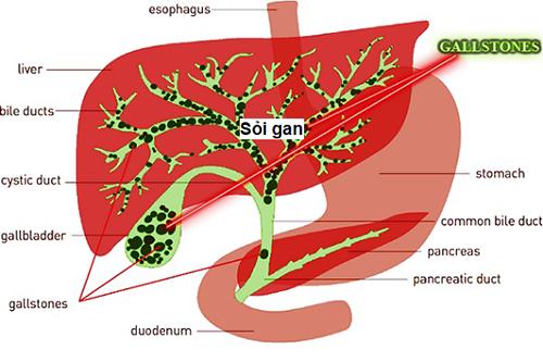 Cùng tìm hiểu dấu hiệu của bệnh sỏi gan là gì để mọi người cùng tránh