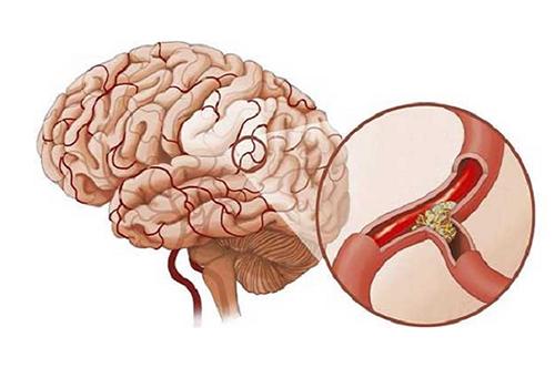 Phòng tránh bệnh tai biến mạch máu não để không gặp phải biến chứng nguy hiểm