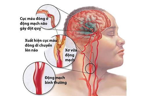 Những triệu chứng thường gặp của bệnh tai biến mạch máu não là gì?