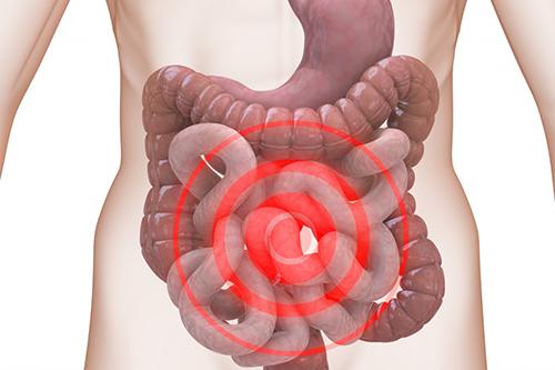 Cần có những biện pháp ngăn chặn hội chứng ruột kích thích
