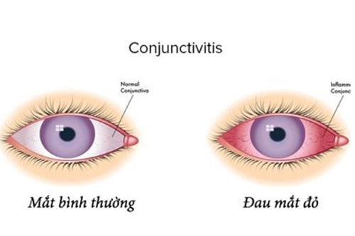 Dược sĩ cho biết những dấu hiệu và cách điều trị đau mắt đỏ tốt nhất