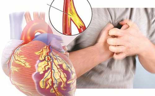 Bệnh động mạch vành nên ăn kiêng như thế nào?