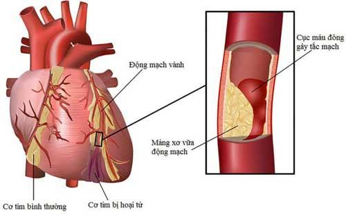 Thông tin bệnh động mạch vành là gì?