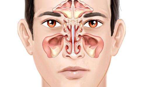 Chuyên gia CĐ Y Dược cho biết nguyên nhân của bệnh ung thư mũi họng