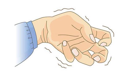 Những nguyên nhân phổ biến gây nên hiện tượng run tay là gì ?