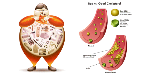 Nguyên nhân nào gây ra rối loạn mỡ máu?