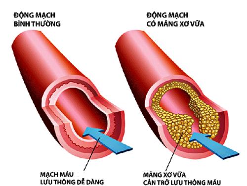 Rối loạn mỡ máu là bệnh gì?