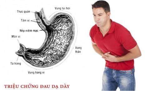Triệu chứng của bệnh đau dạ dày bạn cần nên biết