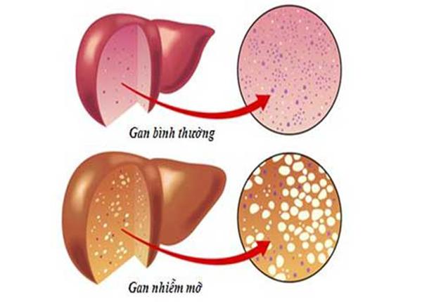 Những hậu quả đáng gờm của bệnh gan nhiễm mỡ