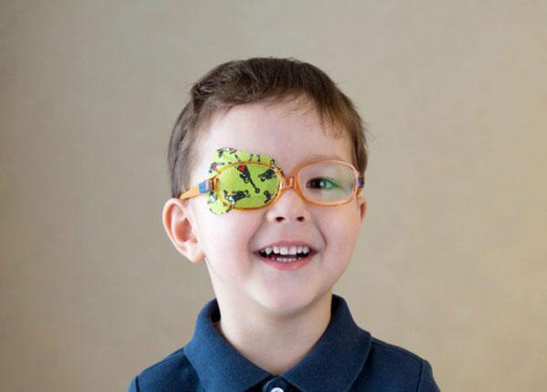 Nhược thị có thể xảy ra ở 1 bên mắt hoặc cả hai mắt