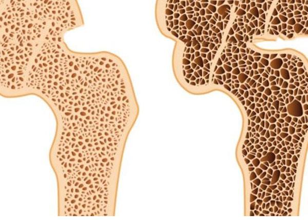 Bạn có biết triệu chứng của một bệnh nhân loãng xương là gì không?