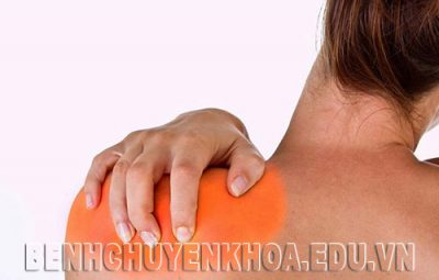 Bị đau vai gáy có phải mắc bệnh thoái hóa đốt sống cổ