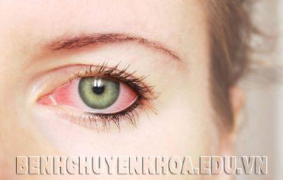 Nguyên nhân, triệu chứng và cách điều trị đau mắt đỏ
