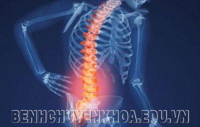 Thoái hóa cột sống nguyên nhân và cách điều trị