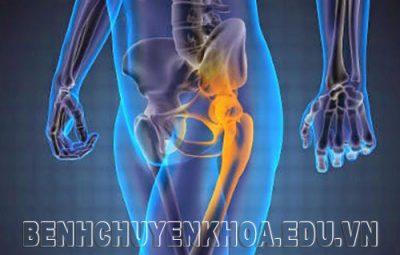 Nguyên nhân triệu chứng bệnh thái hóa khớp háng