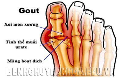 Bệnh gout nguyên nhân, biểu hiện và cách điều trị