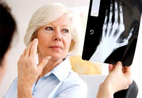 Món ăn bài thuốc hỗ trợ điều trị bệnh gout ở người già