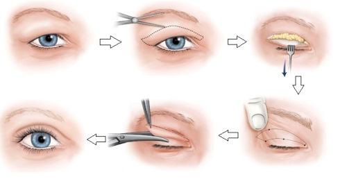 Cắt da thừa mí mắt trên khiến giúp bạn có đôi mắt trẻ trung hơn