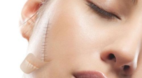 Xử lý các tổn thương có thể hình thành sẹo cũng là cách chống sẹo hiệu quả