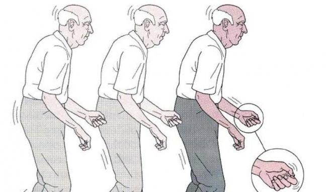 Bệnh parkinson dẫn đến hạn chế vận động