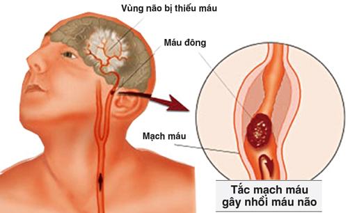 Nguyên nhân gây ra rối loạn tuần hoàn não