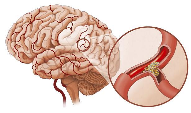 Thời gian xảy ra tai biến mạch máu não khi nào?