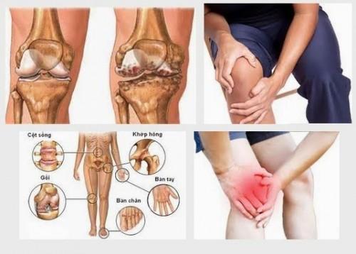 Người già thường hay mắc các chứng bệnh về xương khớp