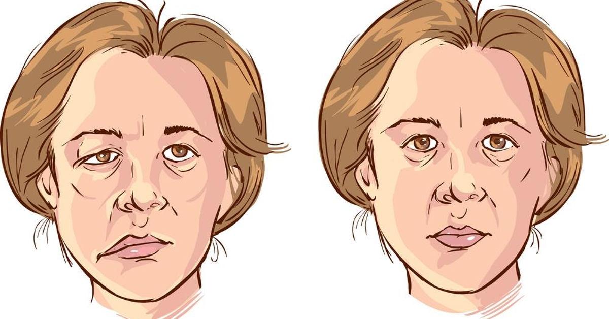 Việc điều trị liệt dây thần kinh mặt có thể áp dụng nhiều phương pháp khác nhau