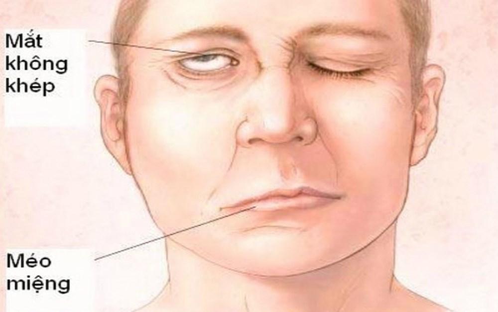 Bác sĩ Y học cổ truyền hướng dẫn cách xoa bấm huyệt điều trị liệt thần kinh mặt