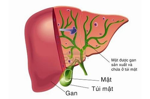 Lưu ý những dấu hiệu thường gặp của bệnh sỏi gan để điều bệnh kịp thời