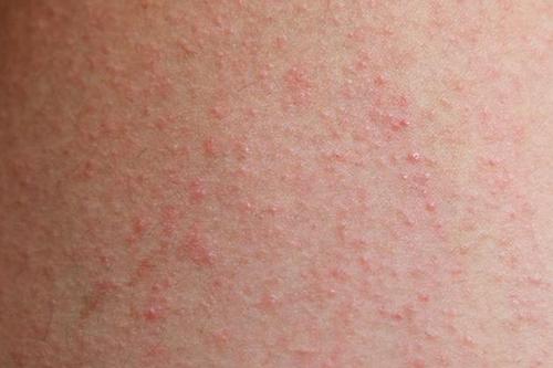 Dược sĩ chia sẻ cách điều trị bệnh eczema và những lưu ý phòng bệnh