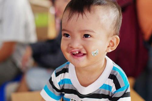 Vì những mầm non tương lai cùng tìm hiểu dị tật bẩm sinh ở trẻ em
