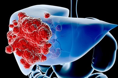 Việt Nam có tỉ lệ ung thư gan cao hàng đầu thế giới, nguyên nhân là gì?