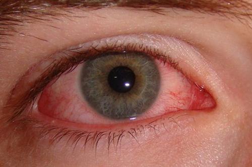 Những triệu chứng điển hình của đau mắt đỏ là gì?