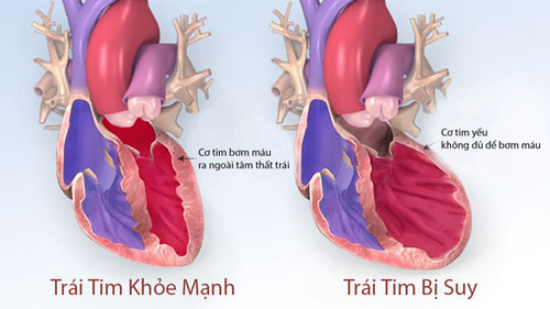 Suy tim là bệnh gì?
