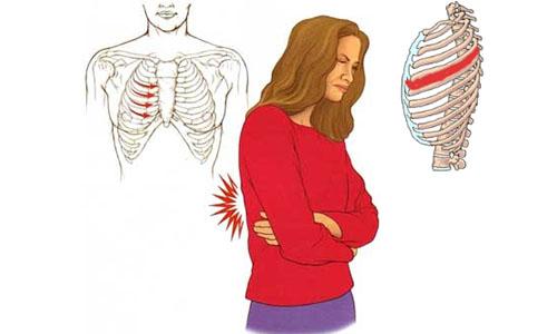 Những biểu hiện của bệnh đau thần kinh liên sườn là gì?