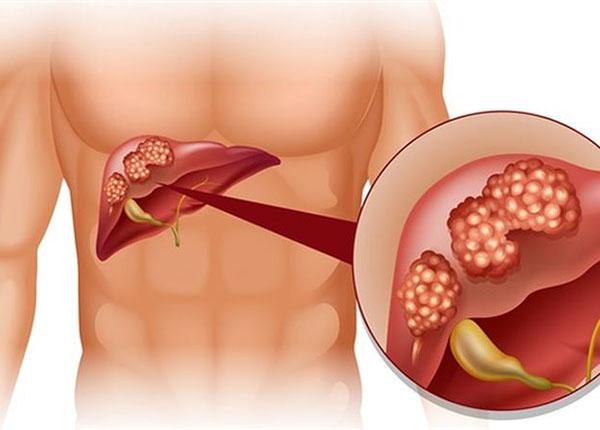 Dấu hiệu sớm nhận biết bệnh ung thư gan là gì ?